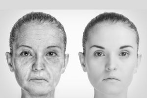 The Old Women Who Were Skinned